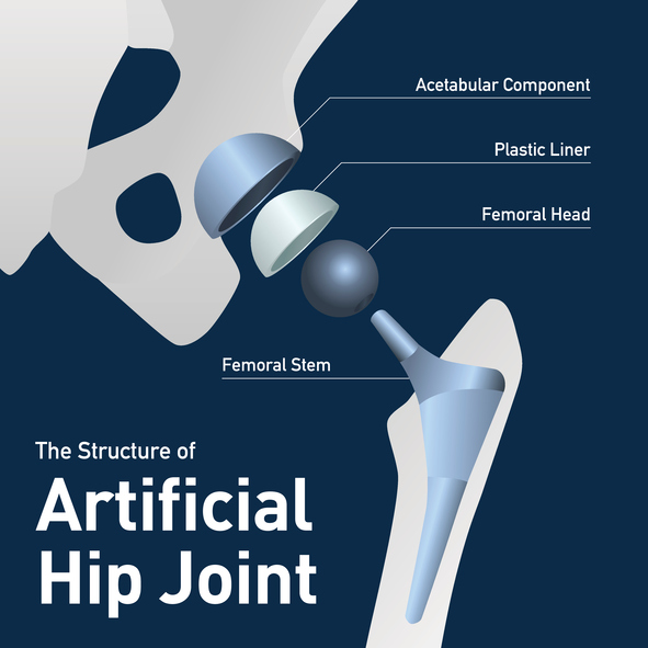 Structure of the artificial hip joint.