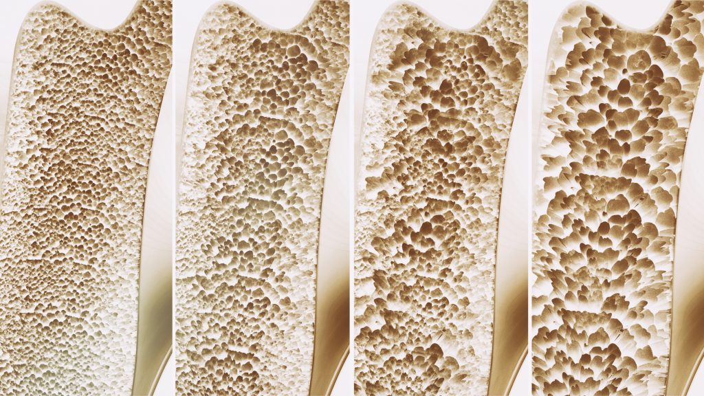 Osteoporosis in 4 stages
