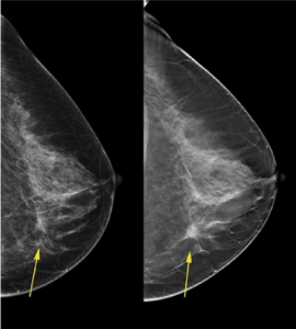 A comparison of 2D and 3D mammography.