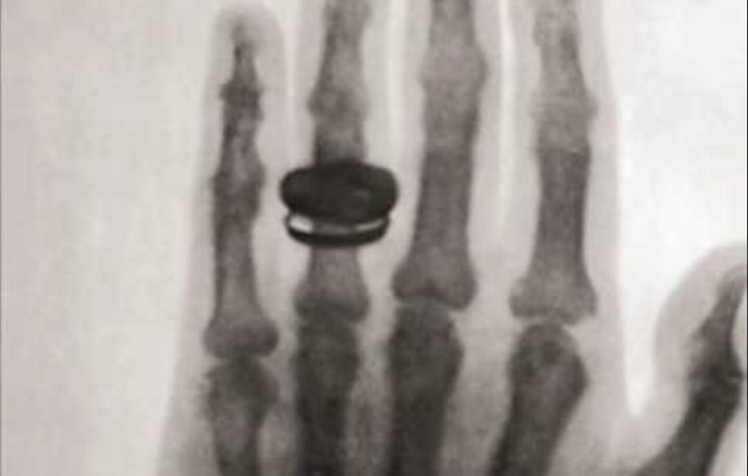 Image of the first xray